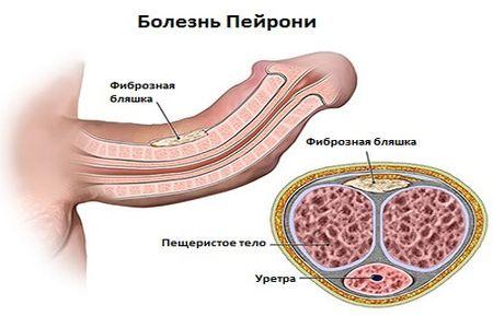схема болезни пейрони