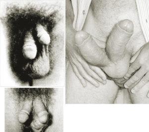 дифаллия у мужчин фото
