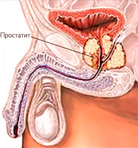 Диагностика хронического простатита